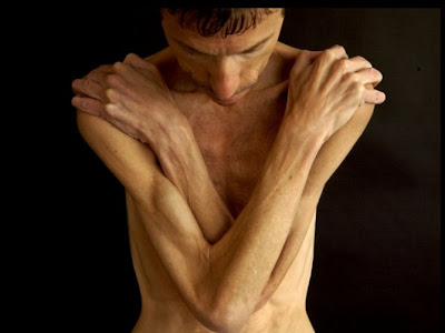 anorexic person in world. eating Anorexic+person