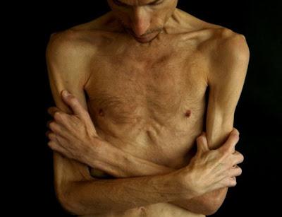 http://2.bp.blogspot.com/_10yYjoTIYE0/SdqxhMitcjI/AAAAAAAACqg/ui6spUANRk4/s400/anorexia+-+Bryan+Bixler+%234.jpg