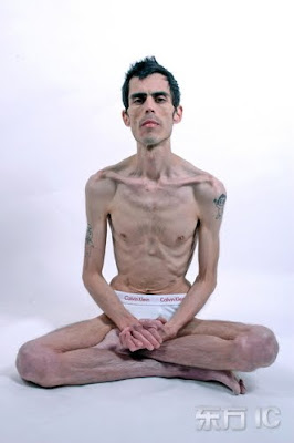 Jeremy Gillitzer, anorexic, bulimic, anorexia, bulimia