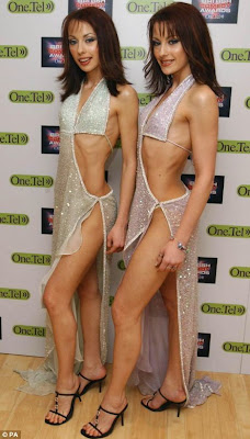 Monica Irimia, Gabriela Irimia, anorexic twins, twins, The Cheeky Girls, anorexia, anorexic, starvation, recovery, lanugo, laxatives, eating disorder