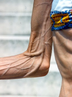 anorexic woman arm