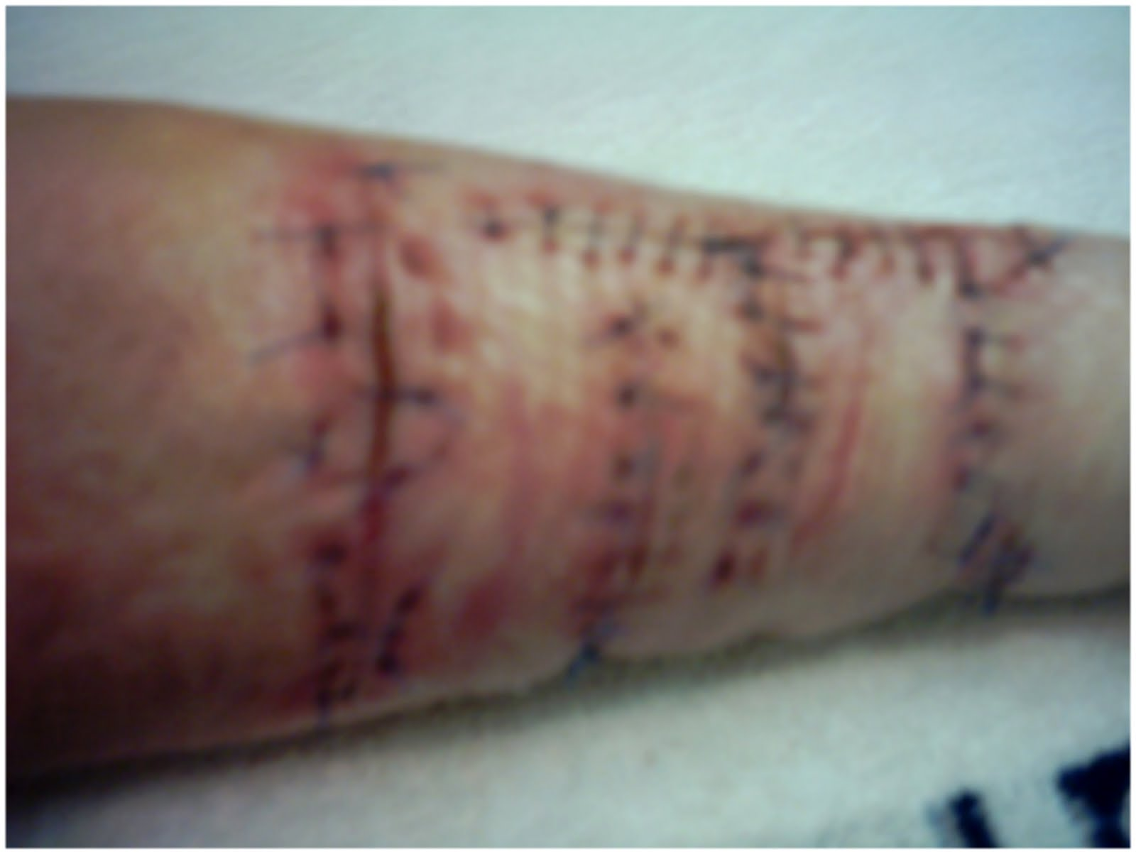 My arm after surgery after I'd severed 3 tendons.