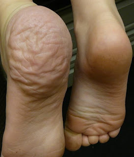 Proteus Syndrome affected foot