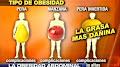 Obesidad: Tipos y complicaciones