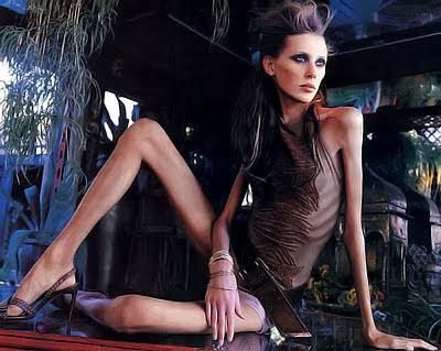 http://2.bp.blogspot.com/_1HaqwylS6Uc/TB9aWFy8lJI/AAAAAAAAAWs/yPimptOVvAY/s400/anorexia-10.jpg