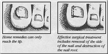 Ingrown toenail diagram.