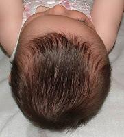plagiocefalia anterior