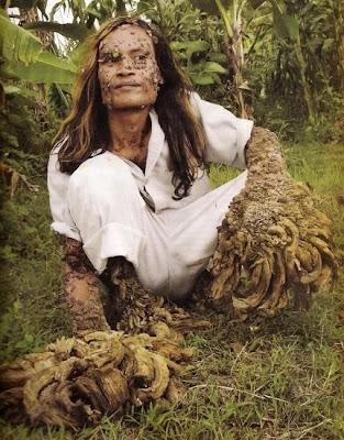 มนุษย์ต้นไม้ ( Tree man )