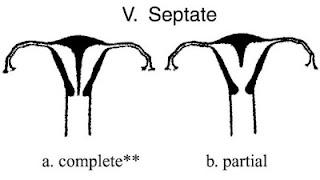 http://2.bp.blogspot.com/_1ZmRYwNaZCo/SWOVEQojuqI/AAAAAAAAANw/-Y1avYEOLog/s400/uterine-septate.jpg