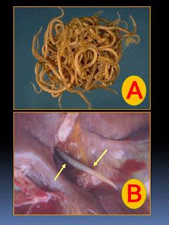 Teste de sangue na criança em vermes