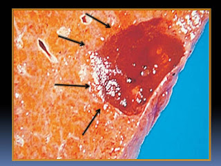 gallbladder after surgery diet zero