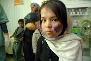 Leishmaniasis-Epidemia-en-Afganistán