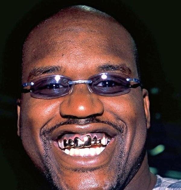 Black Stuff Southern White Girls Like 2 Gold Teeth And