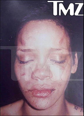 Rihanna's Forehead injured