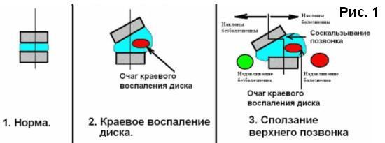 Механизм остеохондроза