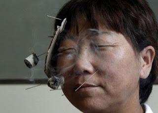 Традиционная китайское лечение паралича, лицевого нерва
