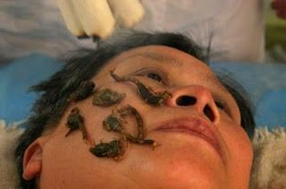 Лечение мертвыми скорпионами
