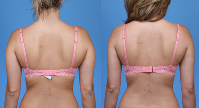 More liposuction back fat bra not clear