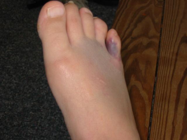 Удар пальца на ноге как лечить в домашних условиях