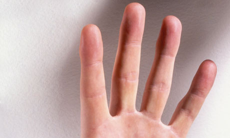 Men measure their fingers to check their risk of prostate cancer