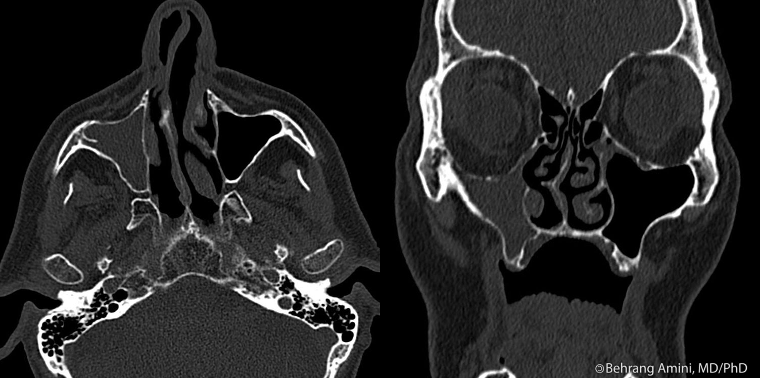 unilateral maxillary sinus mucocele Mucocele of maxillary sinus surgical treatment of unilateral exophthalmos due to maxillary brown tumor mimicking maxillary sinus mucocele as the first.