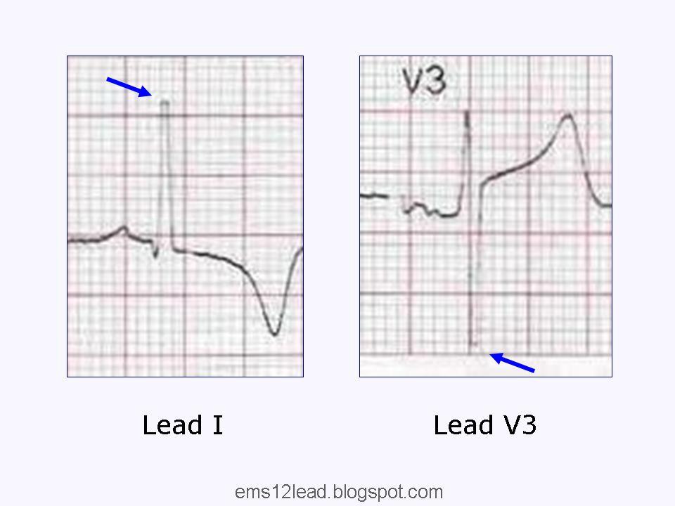Left Ventricular Hypertrophy Part II EMS 12 Lead