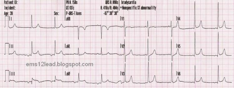 Syncope And Collapse. 39 year old CC: Syncope while