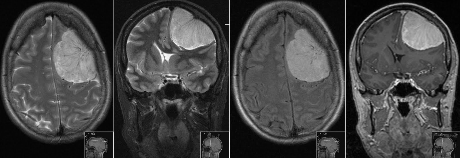 Radiology MRI: Meningioma