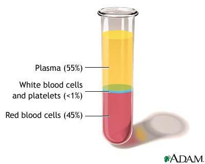 [plasma.jpg]