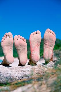 Las uñas en los pies sloyatsya se rompen esto el hongo