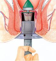 Hemeroid Hemeroids Treatment Relief Symptoms Bleeding