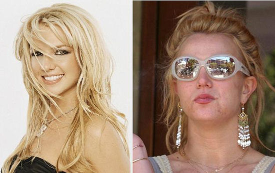 britney spears  before after