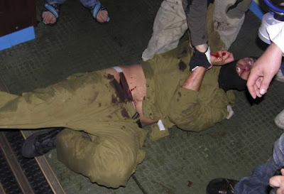 ZZ77D1BB3D Reuters Doctors Images to Make Israel Look Bad