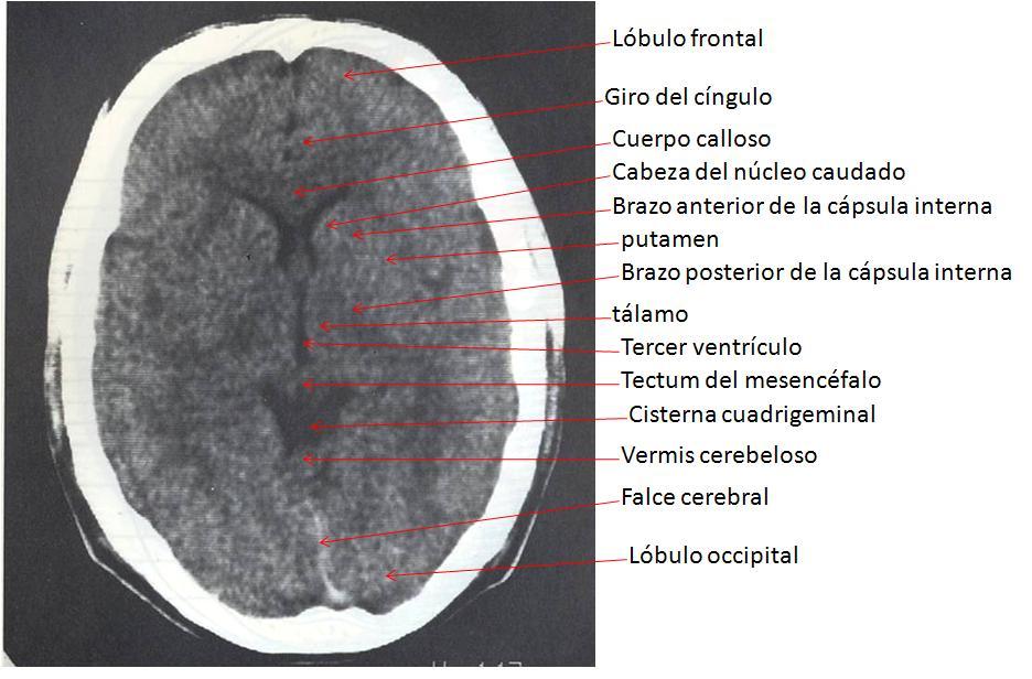 Dorable Mri Anatomía Cerebelo Cresta - Imágenes de Anatomía Humana ...