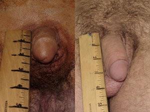 hyrestrophied anal papilla