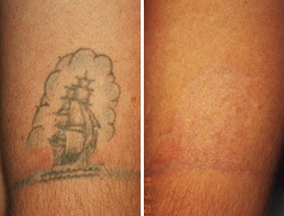 Diverse with traditional remedies, the Laser Tattoo Removal possess a