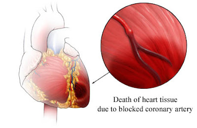 The signs and symptoms of heart attack cancer asbestos cancer the signs and symptoms of heart attack ccuart Images