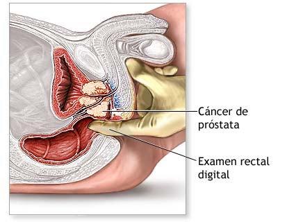 http://2.bp.blogspot.com/_3IXU7P7O5pM/S8YpSs2XipI/AAAAAAAAAO0/4dKkQaLPWuM/s1600/cancer+de+prostata.bmp