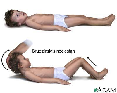 MENINGITIS IN CHILDREN TREATMENT