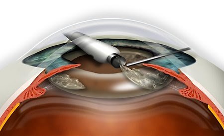 liyana cataract surgery