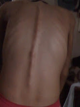 my  back...pretty bones ..