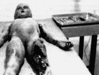 autopsias de famosos character