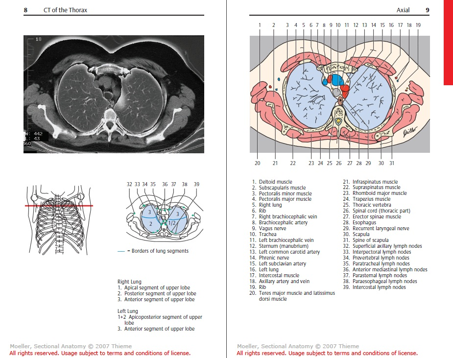 SawaGP: Pocket Atlas of Sectional Anatomy, CT & MRI 3ed (All Volumes)