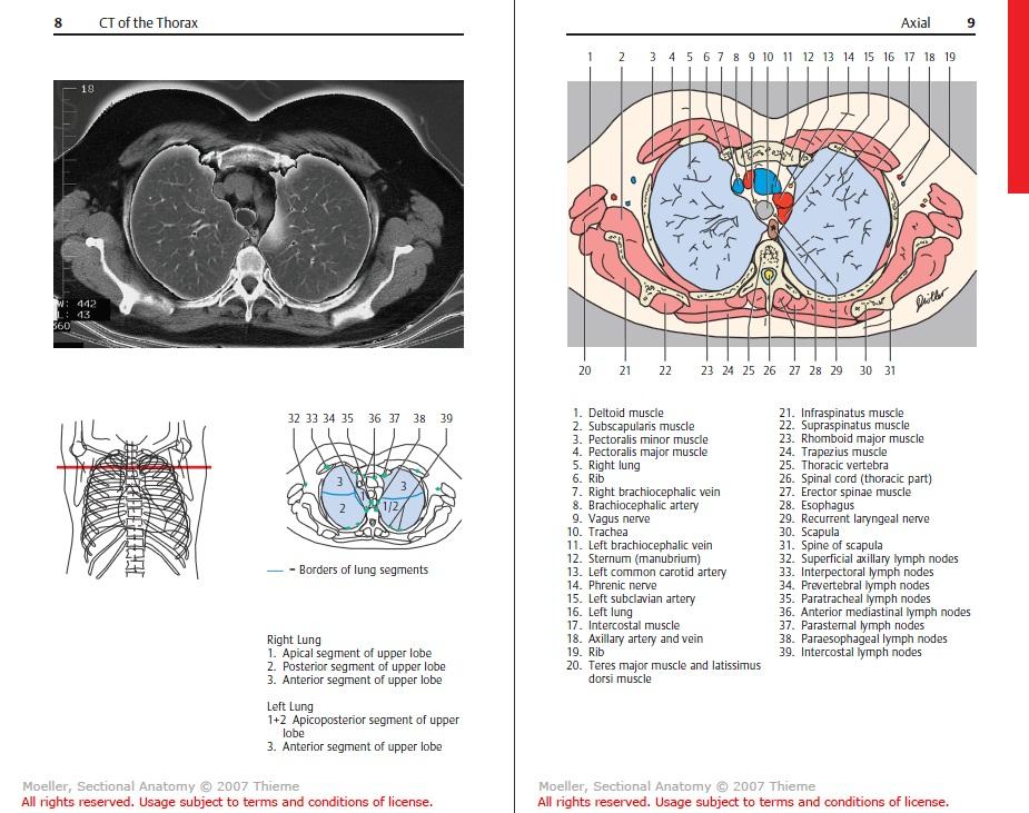 Sawagp Pocket Atlas Of Sectional Anatomy Ct Mri 3ed All Volumes