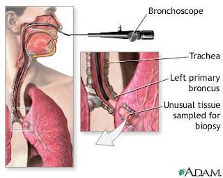 Cure Lung Cancer Now Flexible Bronchoscope Rigid