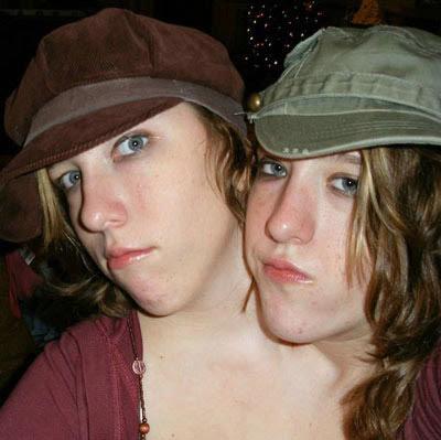 雙頭姊妹 - 驚奇 雙頭姊妹
