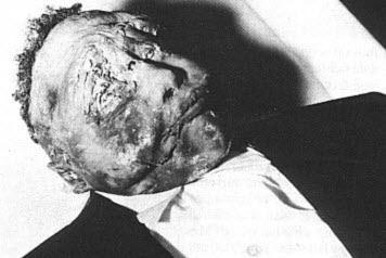 Foto de Emmett Till después de haber sido torturado y asesinado