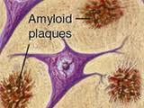 Amiloidosis, Demencia y Aparato Psiquico
