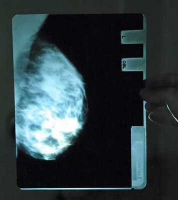 15 Most Weird X-Rays