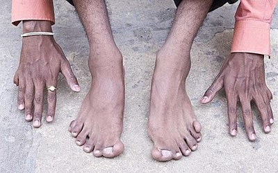 Extraordinary Indian Man With 12 Fingers 14 Toes